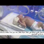 صباحك_مصري   فريق طبي ينجح في إنقاذ حياة طفل رضيع بسوهاج